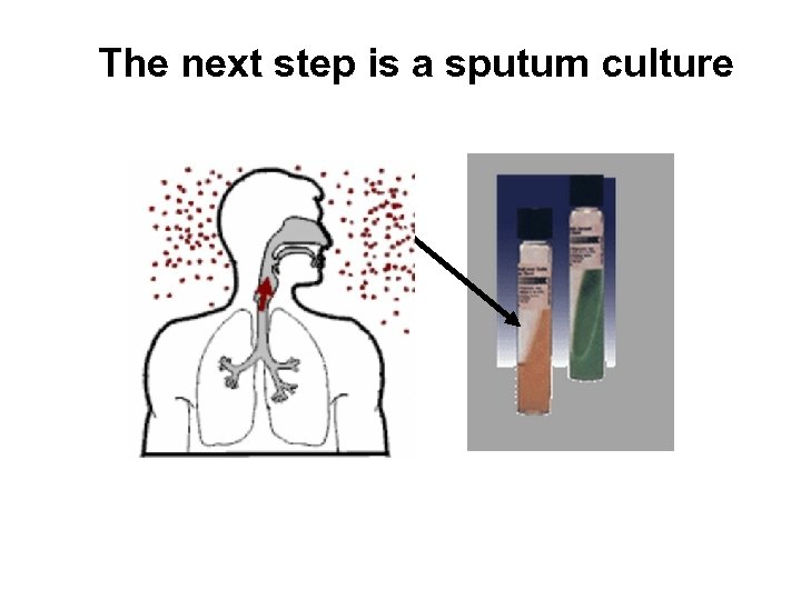 The next step is a sputum culture