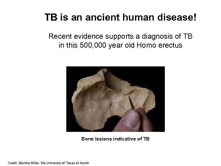 TB is an ancient human disease! Recent evidence supports a diagnosis of TB in
