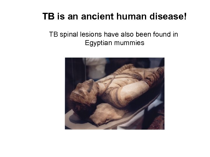 TB is an ancient human disease! TB spinal lesions have also been found in