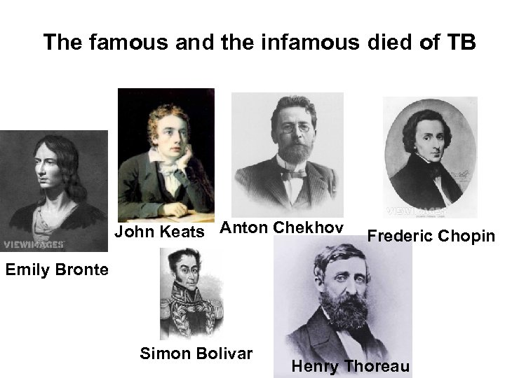 The famous and the infamous died of TB John Keats Anton Chekhov Frederic Chopin