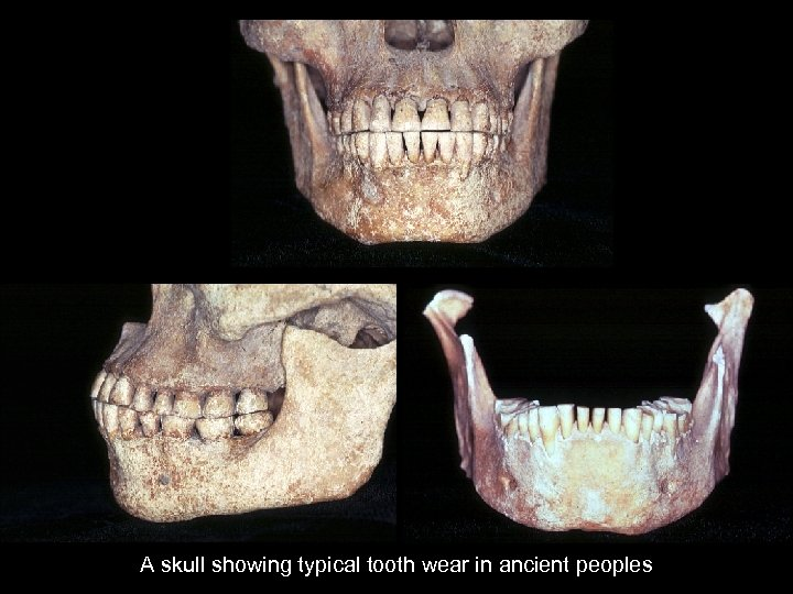 A skull showing typical tooth wear in ancient peoples