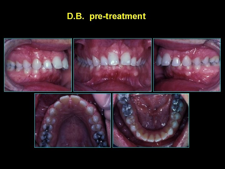 D. B. pre-treatment