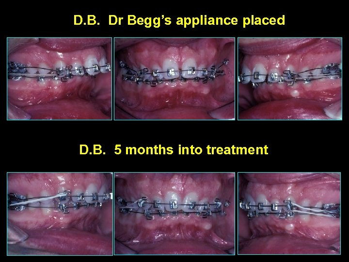 D. B. Dr Begg's appliance placed D. B. 5 months into treatment