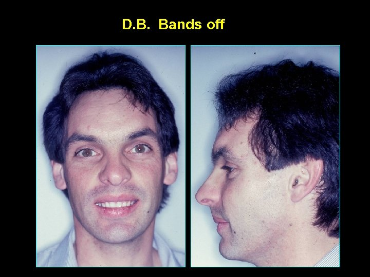 D. B. Bands off