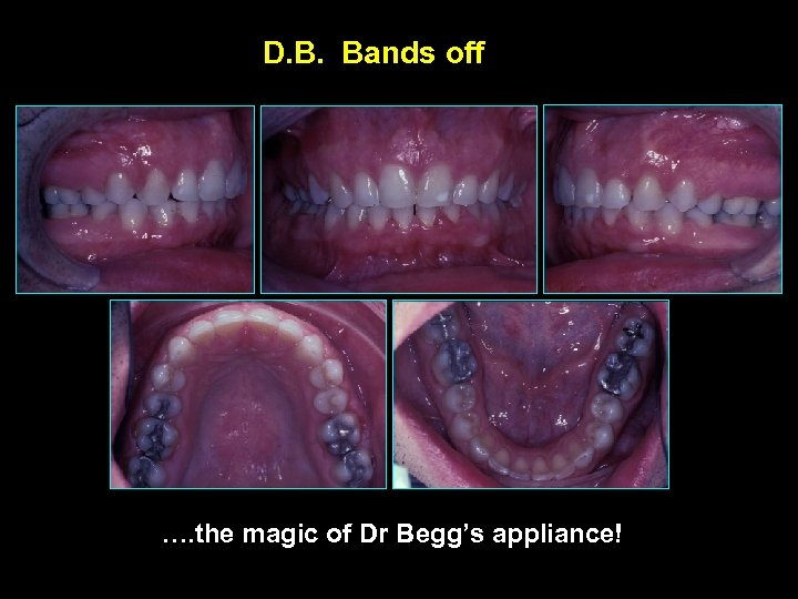 D. B. Bands off …. the magic of Dr Begg's appliance!
