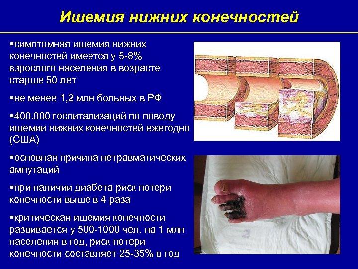 Ишемия нижних конечностей §симптомная ишемия нижних конечностей имеется у 5 -8% взрослого населения в