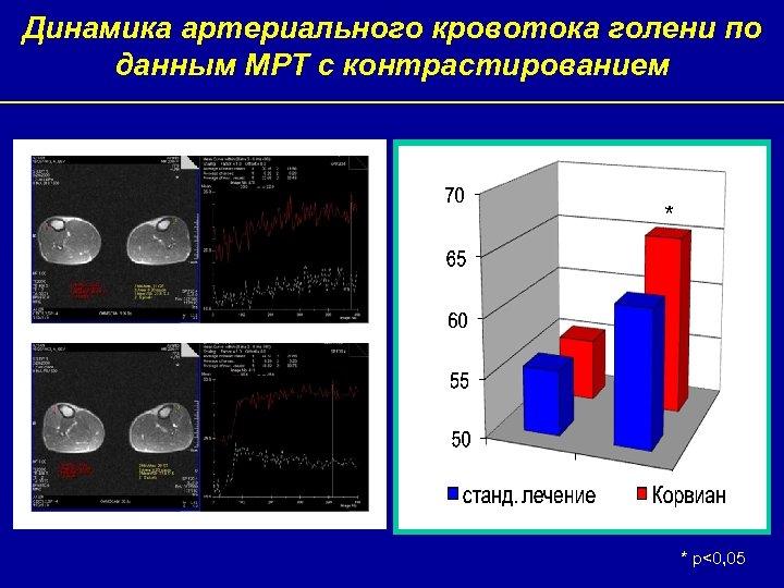 Динамика артериального кровотока голени по данным МРТ с контрастированием * * р<0, 05