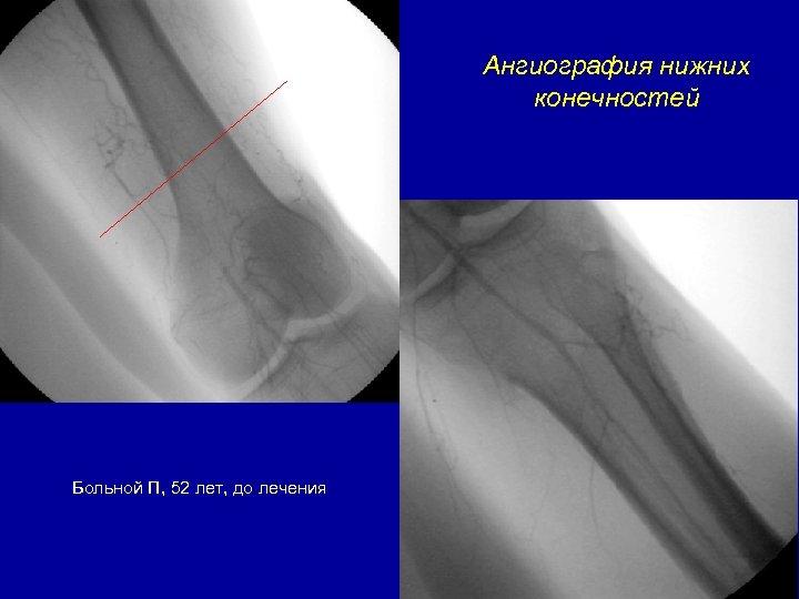 Ангиография нижних конечностей Больной П, 52 лет, до лечения
