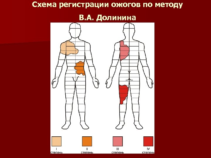 Схема регистрации ожогов по методу В. А. Долинина