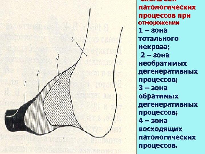 Схема зон патологических процессов при отморожении 1 – зона тотального некроза; 2 –