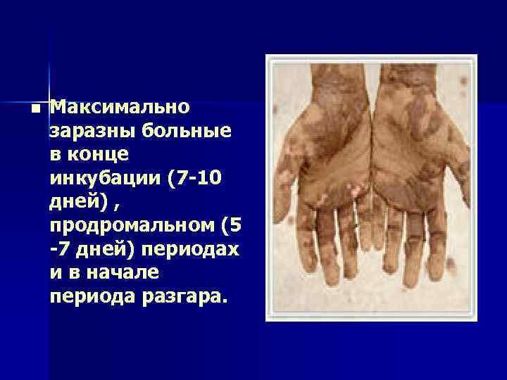 n Максимально заразны больные в конце инкубации (7 -10 дней) , продромальном (5 -7