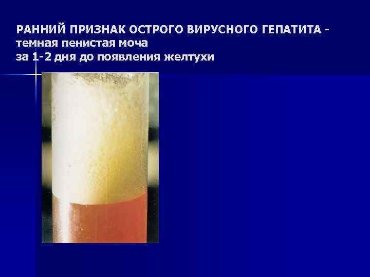 РАННИЙ ПРИЗНАК ОСТРОГО ВИРУСНОГО ГЕПАТИТА - темная пенистая моча за 1 -2 дня до