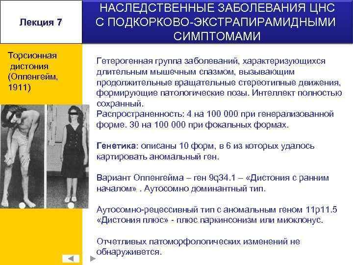 Лекция 7 Торсионная дистония (Оппенгейм, 1911) НАСЛЕДСТВЕННЫЕ ЗАБОЛЕВАНИЯ ЦНС С ПОДКОРКОВО-ЭКСТРАПИРАМИДНЫМИ СИМПТОМАМИ Гетерогенная группа