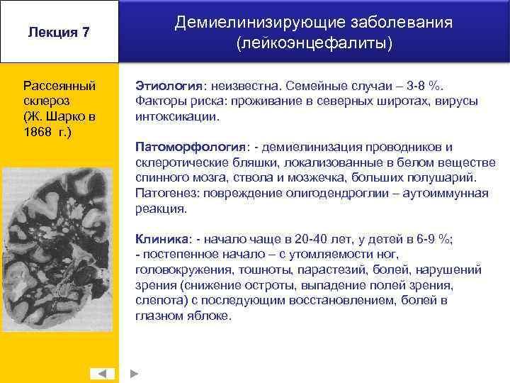 Лекция 7 Рассеянный склероз (Ж. Шарко в 1868 г. ) Демиелинизирующие заболевания (лейкоэнцефалиты) Этиология: