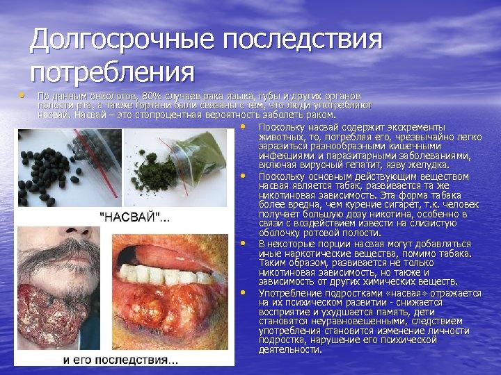 • Долгосрочные последствия потребления По данным онкологов, 80% случаев рака языка, губы и