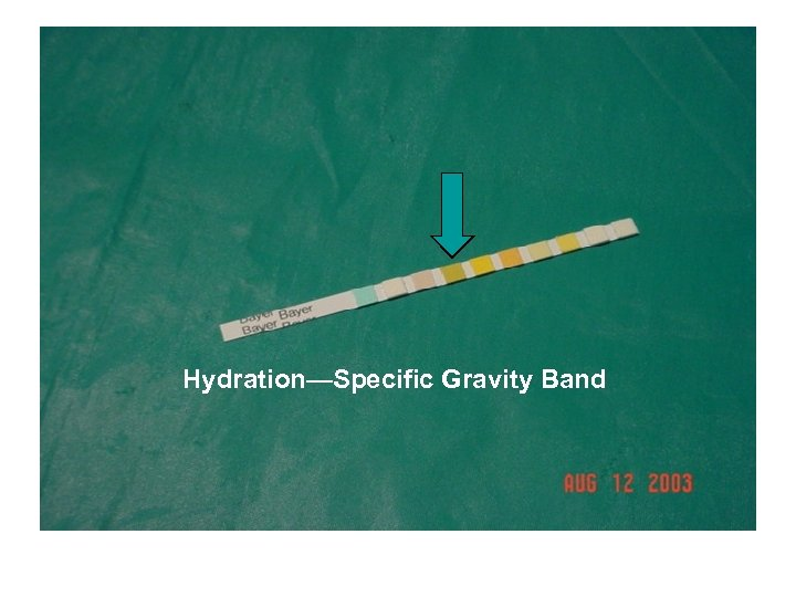 Hydratin – Specific Gravity Band Hydration—Specific Gravity Band