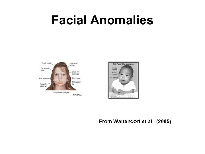 Facial Anomalies From Wattendorf et al. , (2005)