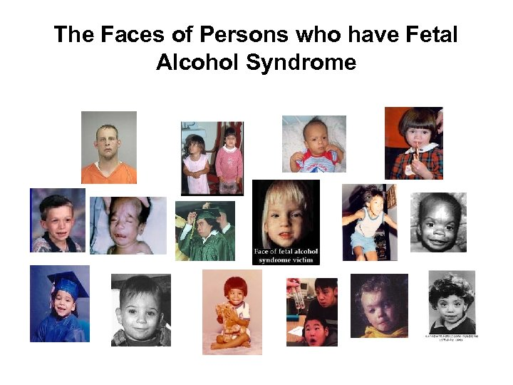 The Faces of Persons who have Fetal Alcohol Syndrome