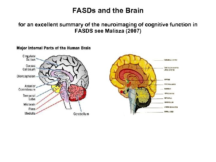 FASDs and the Brain for an excellent summary of the neuroimaging of cognitive function