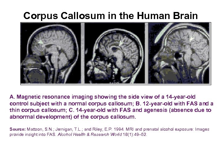 Corpus Callosum in the Human Brain A. Magnetic resonance imaging showing the side view