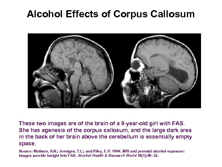 Alcohol Effects of Corpus Callosum These two images are of the brain of a