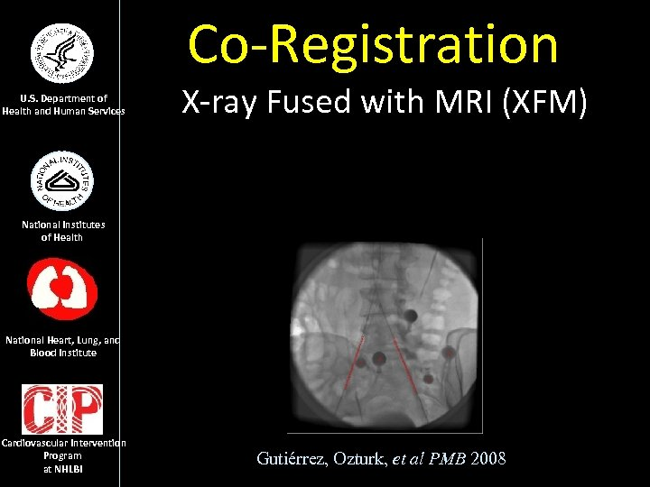 Co-Registration U. S. Department of Health and Human Services X-ray Fused with MRI (XFM)