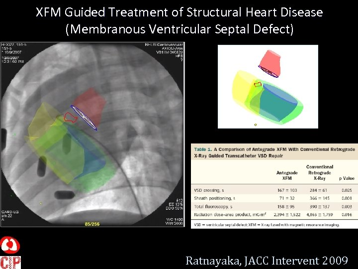XFM Guided Treatment of Structural Heart Disease (Membranous Ventricular Septal Defect) Ratnayaka, JACC Intervent