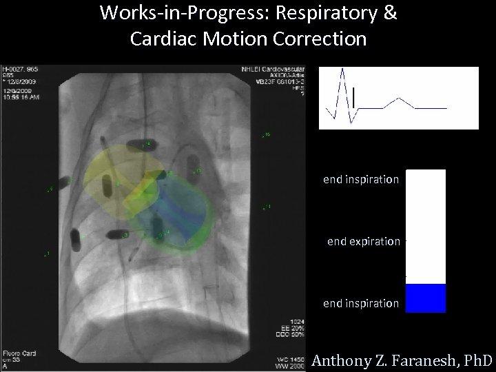 Works-in-Progress: Respiratory & Cardiac Motion Correction end inspiration end expiration end inspiration Anthony Z.
