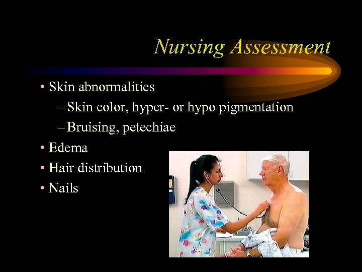 Nursing Assessment • Skin abnormalities – Skin color, hyper- or hypo pigmentation – Bruising,