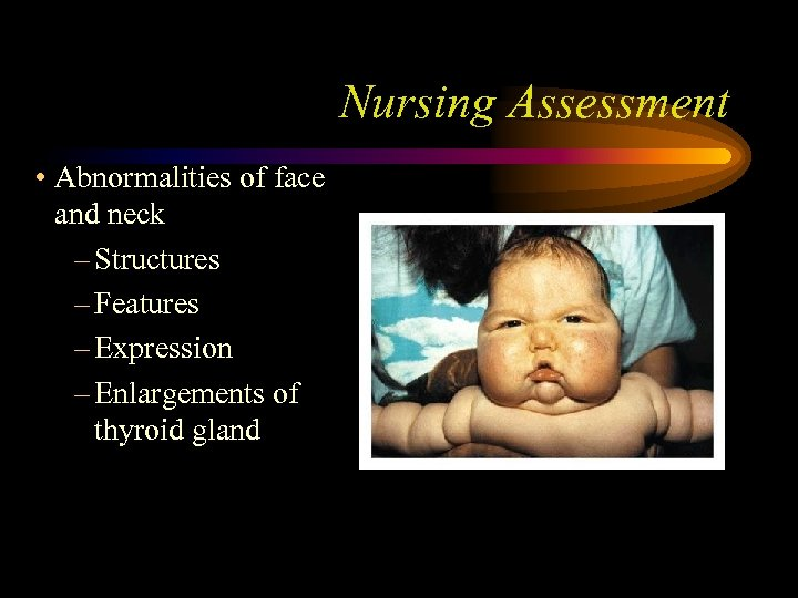 Nursing Assessment • Abnormalities of face and neck – Structures – Features – Expression