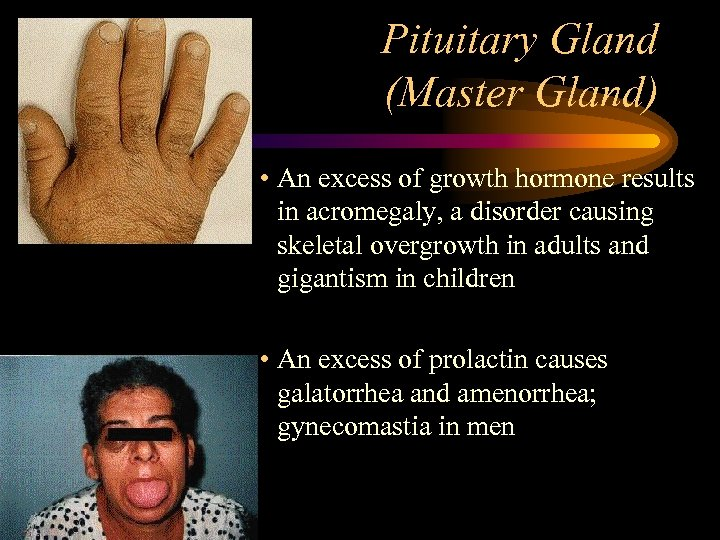 Pituitary Gland (Master Gland) • An excess of growth hormone results in acromegaly, a