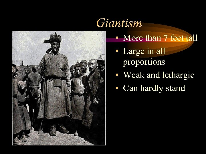 Giantism • More than 7 feet tall • Large in all proportions • Weak