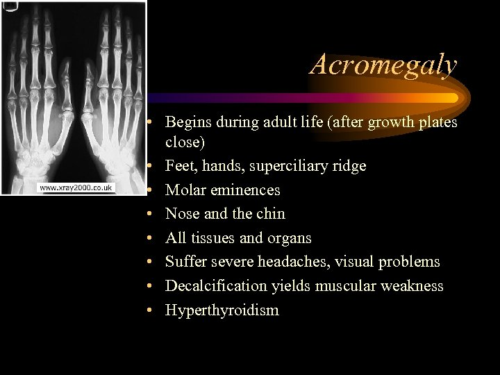 Acromegaly • Begins during adult life (after growth plates close) • Feet, hands, superciliary