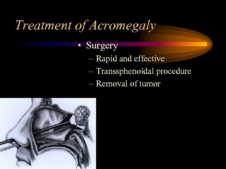 Treatment of Acromegaly • Surgery – Rapid and effective – Transsphenoidal procedure – Removal