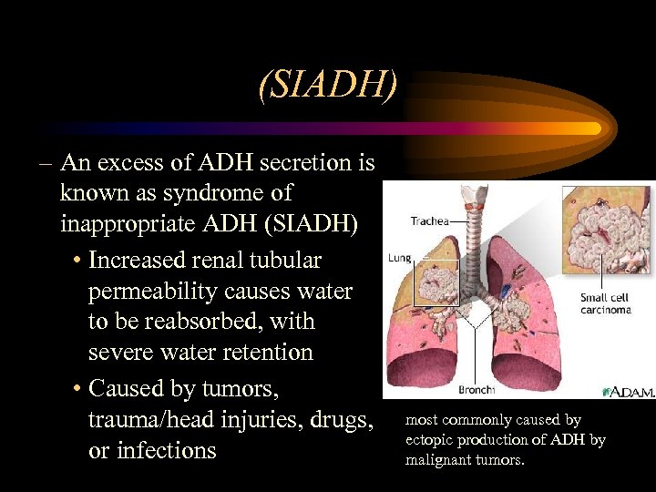 (SIADH) – An excess of ADH secretion is known as syndrome of inappropriate ADH