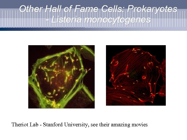 Other Hall of Fame Cells: Prokaryotes - Listeria monocytogenes Theriot Lab - Stanford University,
