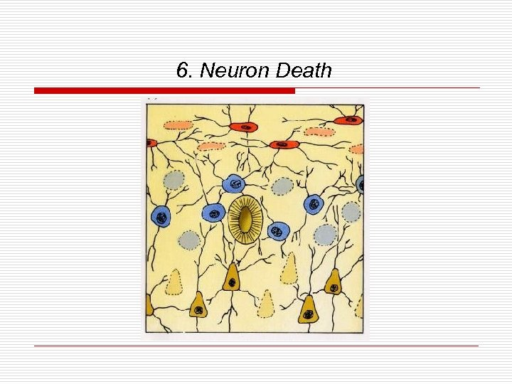 6. Neuron Death