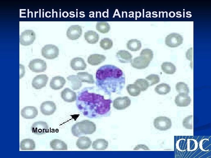 Ehrlichiosis and Anaplasmosis Morulae