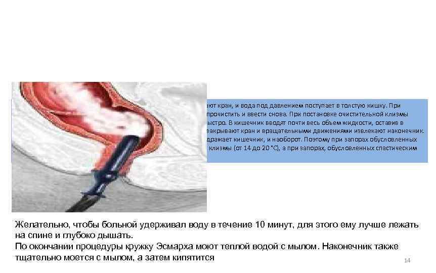 Кружку Эсмарха подвешивают на 1 метр над больным, открывают кран, и вода под давлением
