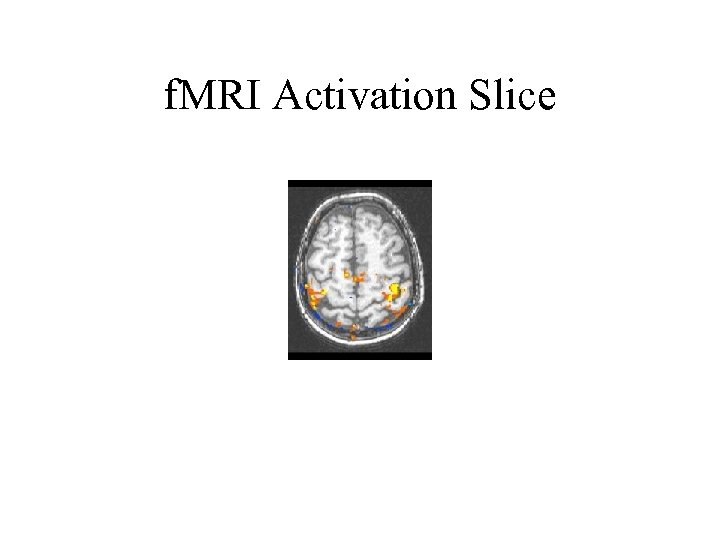 f. MRI Activation Slice