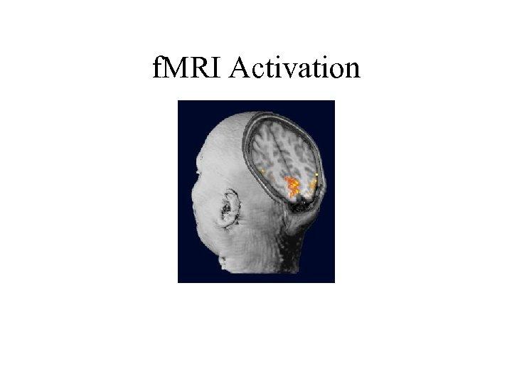 f. MRI Activation