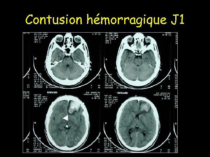 Contusion hémorragique J 1