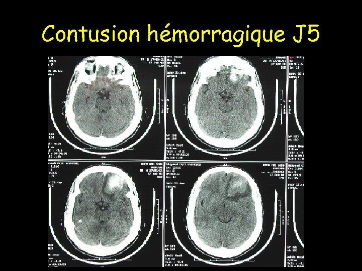 Contusion hémorragique J 5