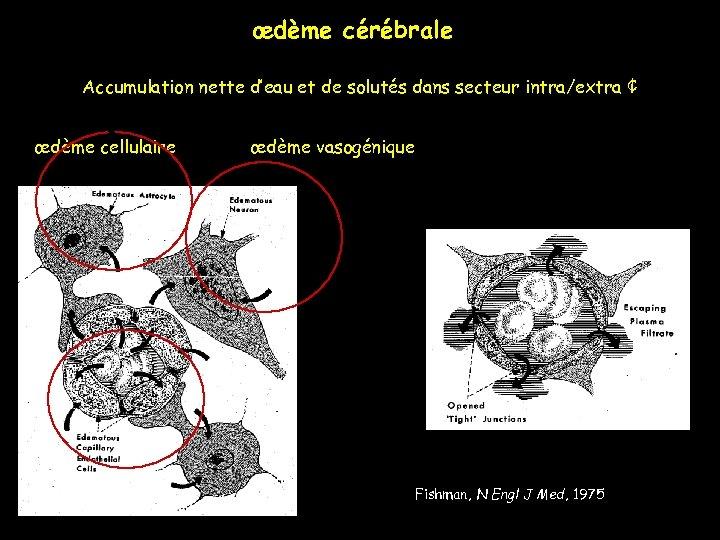 œdème cérébrale Accumulation nette d'eau et de solutés dans secteur intra/extra ¢ œdème cellulaire