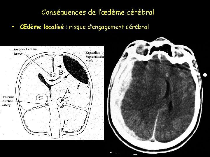 Conséquences de l'œdème cérébral • Œdème localisé : risque d'engagement cérébral