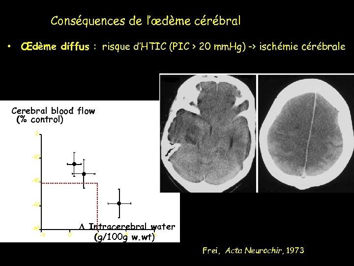 Conséquences de l'œdème cérébral • Œdème diffus : risque d'HTIC (PIC > 20 mm.