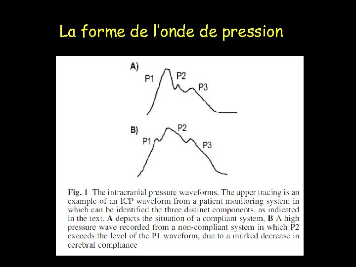 La forme de l'onde de pression