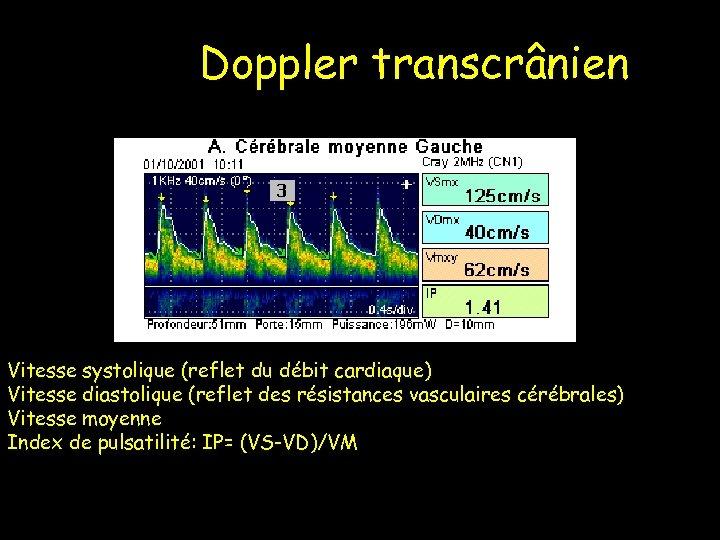 Doppler transcrânien Vitesse systolique (reflet du débit cardiaque) Vitesse diastolique (reflet des résistances vasculaires