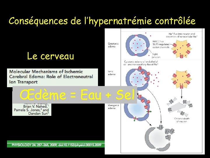 Conséquences de l'hypernatrémie contrôlée Le cerveau Œdème = Eau + Sel