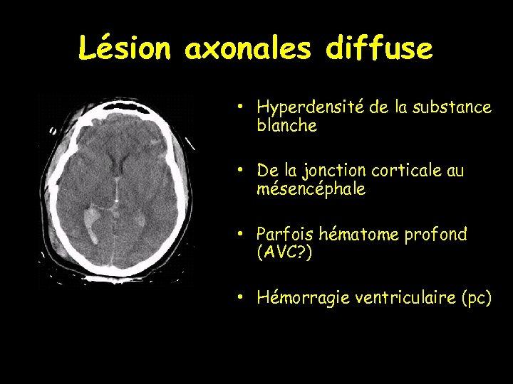 Lésion axonales diffuse • Hyperdensité de la substance blanche • De la jonction corticale